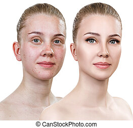 Young woman before and after makeup.