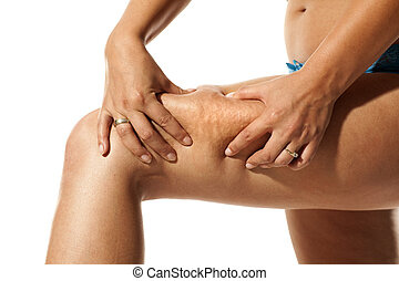 young woman pinching cellulite on her leg