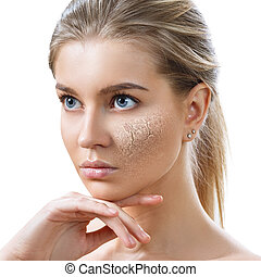 Young woman with dehydrated skin.
