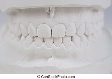 Zähne Gipsabdruck