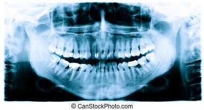 z�hne, röntgenstrahl- bild