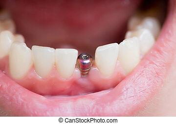 ząb, jednorazowy, wpajać