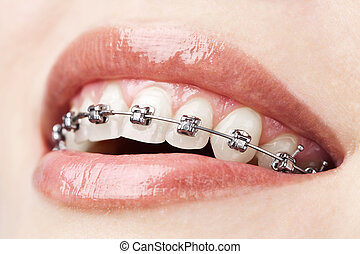 zęby, z, klamry