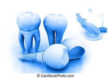 zahn, dental, implantat, menschliche