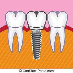 zahn, implantat