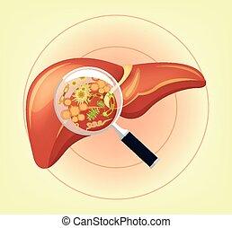 zarodki, bacteria, wątroba