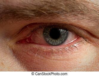 zaszły krwią, oko