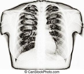 zdravý, podoba, hruď, lidský, rentgen