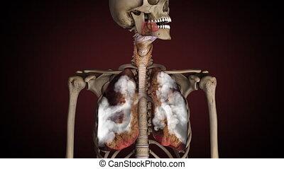 zdrowy, obraca, palacz, chory, płuca