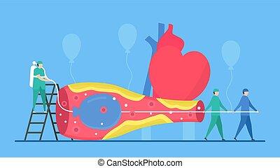 ziekte, arteries., vernauwen, dit, cardiologie, illustration., bloed, balloon, verbeteren, vector, coronair, vessel., angioplasty, gebruiken, stroom