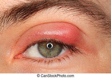 ziekte, oog, het kijken, persoon, fototoestel, sty, pus