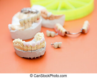 Zircon teeth - Dental zircon / pressed ceramic, base for an...
