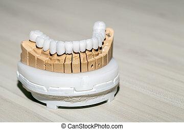 zirconium, porcelana, diente, placa, en