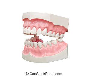 zubní, vzor, dentoform, zuby