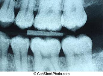 zubní x- vyzařovat