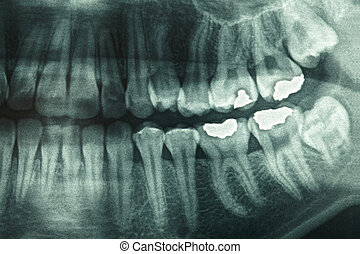 zubní xray
