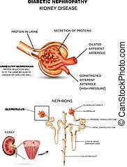 zuckerkrank, nephropathy, krankheit, niere