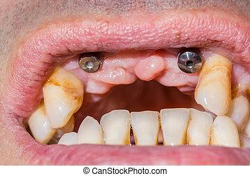 zwei, eckzahn, dental, implantate, in, der, mund, von, a, patient, mit, fortgeschritten, periodontitis